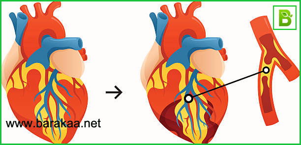علاج صمام القلب بالاعشاب تعرف على الاعشاب التي تعالج مشاكل صمام القلب