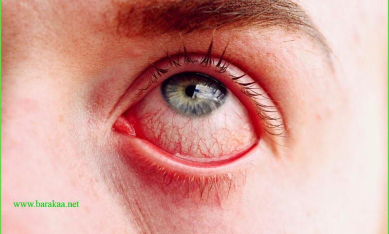 علاج شبكية العين لمرضى السكري بالاعشاب علاج فعال لضعف البصر لمرض السكري
