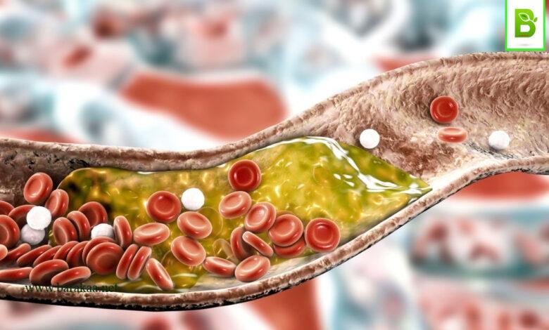 علاج الكولسترول الضار بالاعشاب تخلص من الكولسترول الضار نهائيا بافضل الطرق المجربة