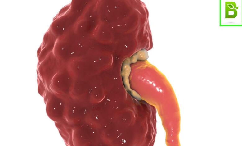 علاج التهاب الكلى بالاعشاب تعرف على علاج التهاب الكلى بالطرق المجربة والامنة