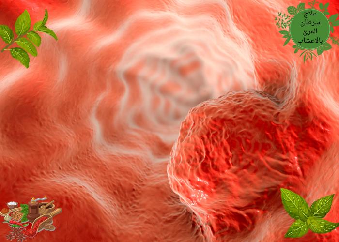 علاج سرطان المرئ بالاعشاب هل الاعشاب تعالج سرطان المرئ بركة للأعشاب الطبية