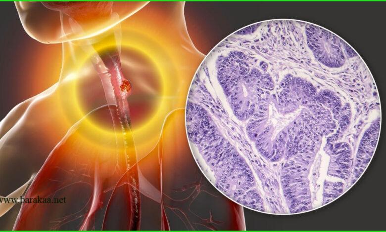 علاج التهاب المريء بالاعشاب تعرف على كيفية علاج التهاب المريء نهائيا بطرق مجربة