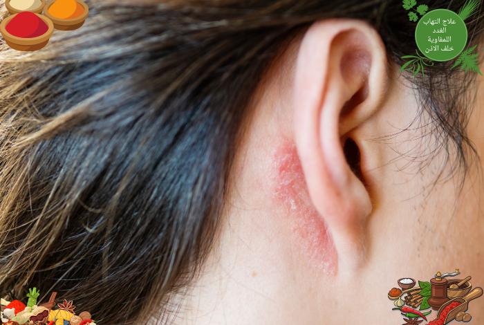 علاج التهاب الغدد اللمفاوية تحت الاذن اسباب تورم الغدد الليمفاوية خلف الاذن